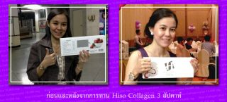 """Hiso Collagen Plus"" 15000mg Collagen Peptide Q10 L Cysteine 15g x 15 Sachets"